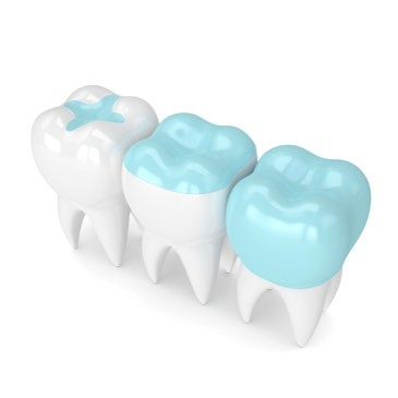 3d model of dental Porcelain inlay onlay crown