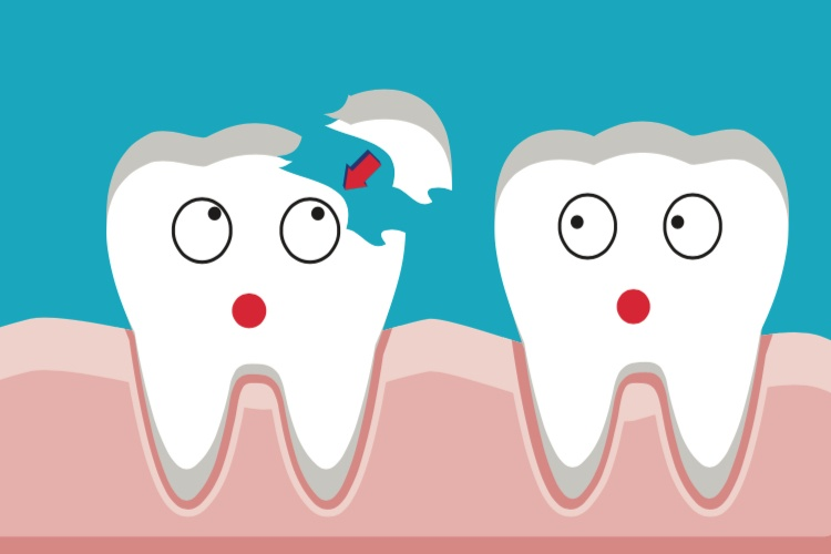 What causes teeth to crack?